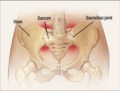 Sacroiliac Joint Dysfunction Katie Johnston Osteopathy South West